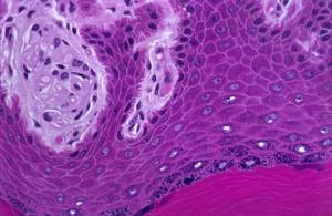 Células epiteliais de descamação