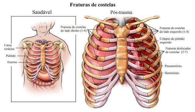 Dor na costela esquerda abaixo da mama