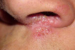 herpes nasal